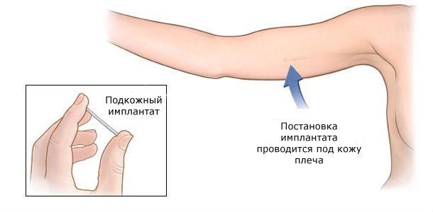 Вживление импланта