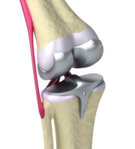 Разработка бионических коленных суставов