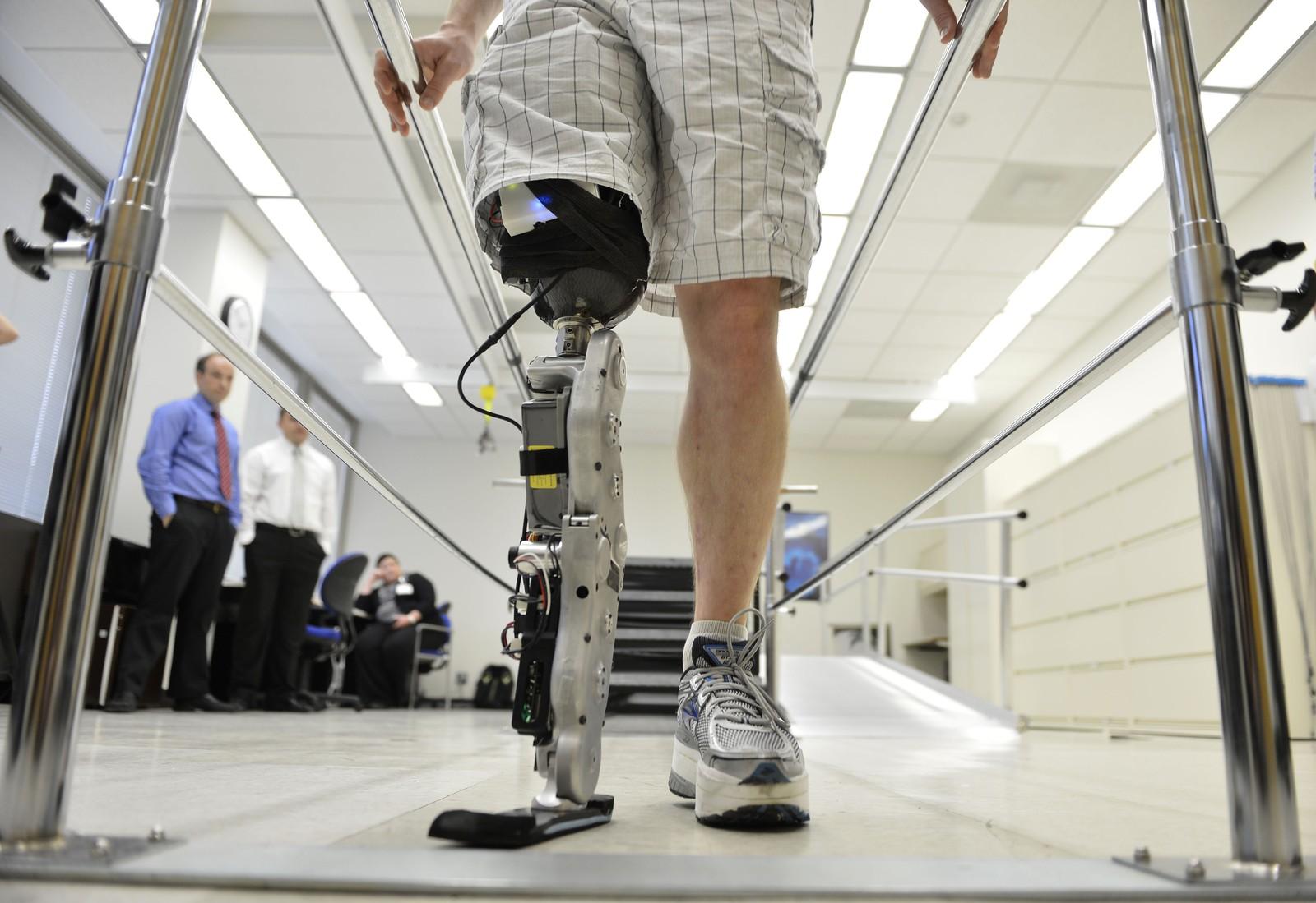 Бионические конечности
