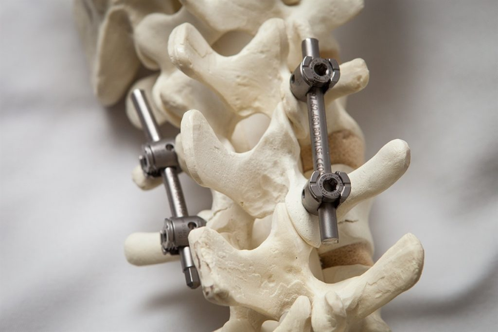 Импланты для позвоночника