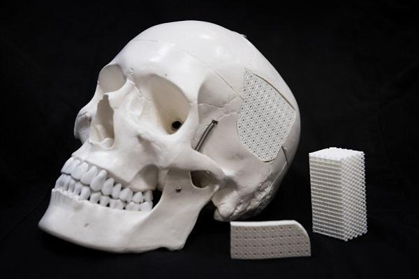пористый имплант костей