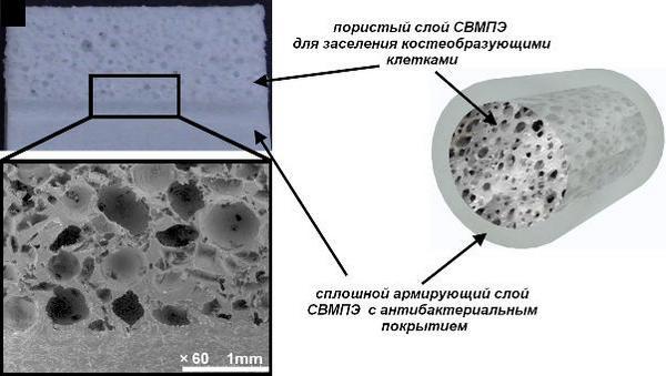 сверхвысокомолекулярный полиэтиленовый имплантполиэтилен