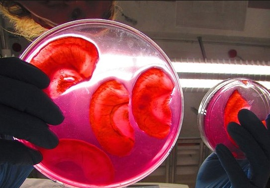 Канадские ученые начали выращивать человеческие уши из яблок