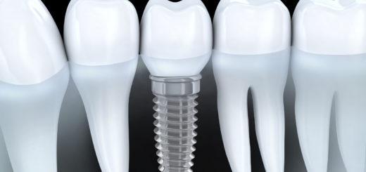 Зубные импланты в медицине