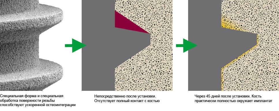 Остеоинтеграция — один из видов интеграции имплантата в костную ткань