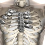 Современной медицине удалось  вживить напечатанные импланты рёбер на 3D принтере.