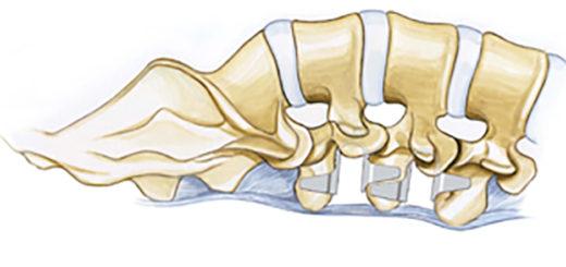 Имплант кофлекс для позвоночника