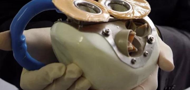 имплантация первого искусственного сердца