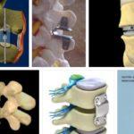 Новейшие технологии фиксации и имплантация позвонков