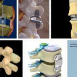 технологии фиксации и имплантация позвонков