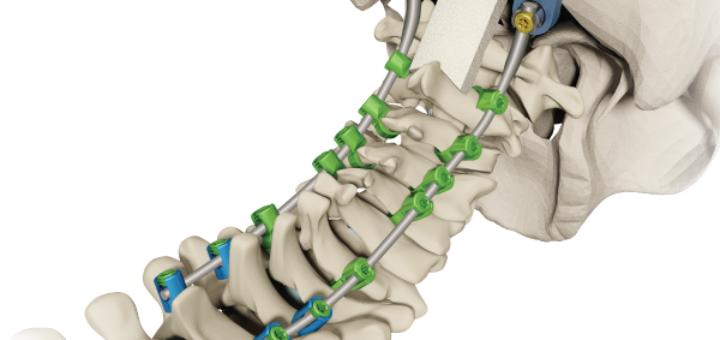 Конструкция шейного ипланта