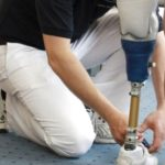 Правила и процедура получения протезов