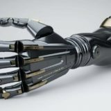 Бионическое протезирование в России