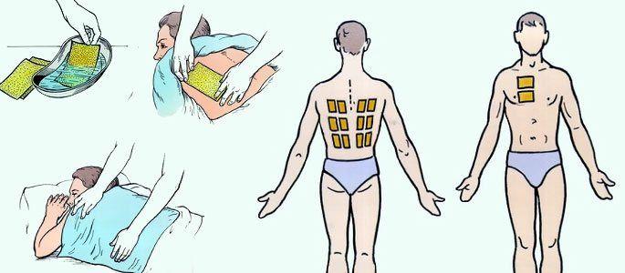 Виды и причины кашля, методы лечения