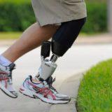 протезы ног ниже колена